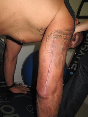 Die Narbe nach der Operation. (Foto: sportv.globo.com)
