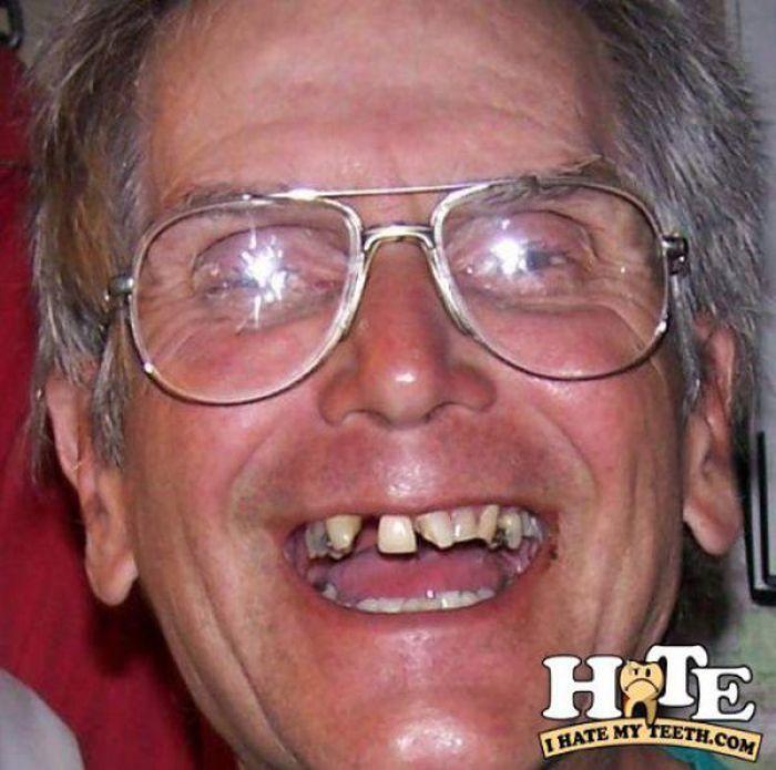 Ząbki, czyli problemy z uzębieniem 25