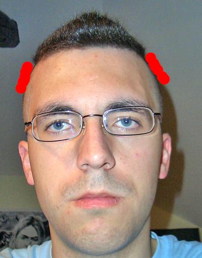 Haarschnitt 1mm