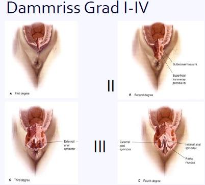 Wie Operation auf die Hämorrhoide Videos bei den Männern machen