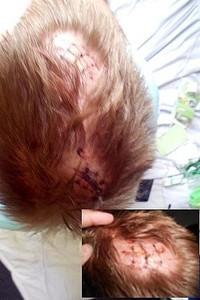 Kopfverletzungen aufgrund von Angriffen mit Gläsern und Flaschen. (Foto: Phuketwan.com)