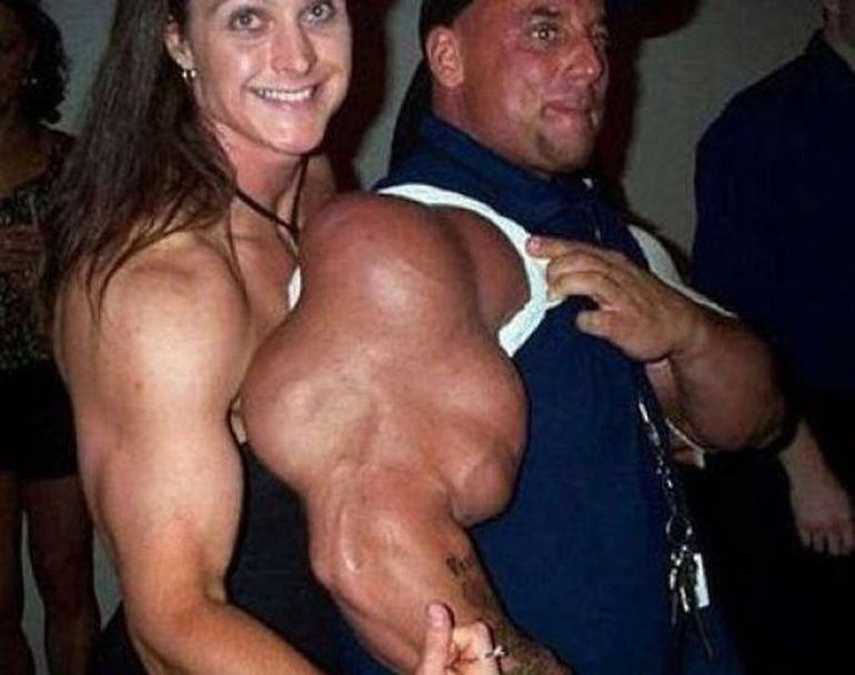 Góra mięśni #2 3