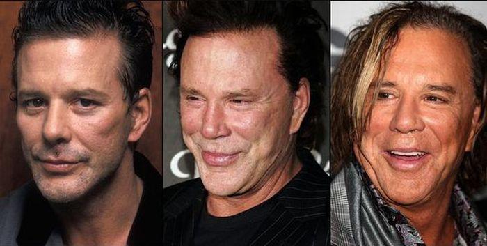 Gwiazdy przed i po operacjach plastycznych 10