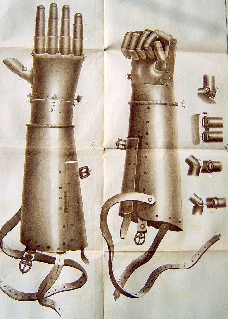 Protezy sprzed XXI wieku 8