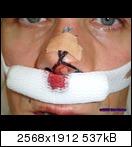 The Krank UWP: Etwas dichter dran, mehr Nasenschleuder