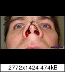 Bloody UWP: von unten ohne Nasenschleuder
